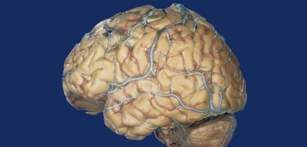 paraziták v lidskem mozku