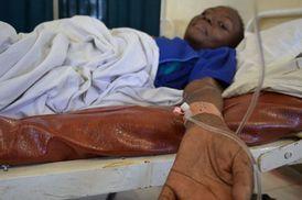 Skoro pět milionů lidí, včetně sedmi set tisíc dětí, nedostává léky a čeká na pomalou a bolestivou smrt.