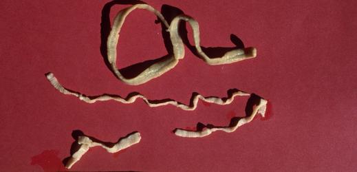 Střevní červ.