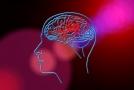 Hluboká mozková stimulace, obecně užívána k léčbě Parkinsonovy choroby, pomohla pacientce od depresí a nadváhy (ilustrační foto).