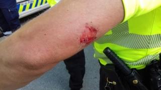 Zranění strážníka po útoku agresivní pejskařky.