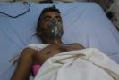 Zraněný muž po útoku na jemenský přístav Hudajdá.