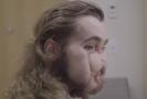Transplantovaný obličej.