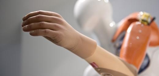 Protéza ruky.