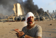 Exploze v Bejrútu si vyžádala nejméně 78 mrtvých a téměř 4000 zraněných